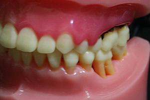 取り 値段 歯石